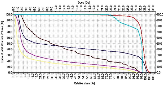 """Adjuvantní radioterapie u pacientů se seminomem technikou """"hokejka"""", brzdný svazek lineárního urychlovače. a) 3rozměrná rekonstrukce individuálně vymezeného cílového objemu vícelamelovým kolimátorem a kritických orgánů  b) vymezení plánovacího cílového objemu v 2D-obraze c) dávkově-objemový histogram (křivka: červená - PTV, tyrkysová - mícha, hnědá - rektum, fialová - pravá ledvina, žlutá - levá ledvina)."""