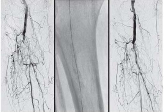 DSA a. poplitea a artérií predkolenia