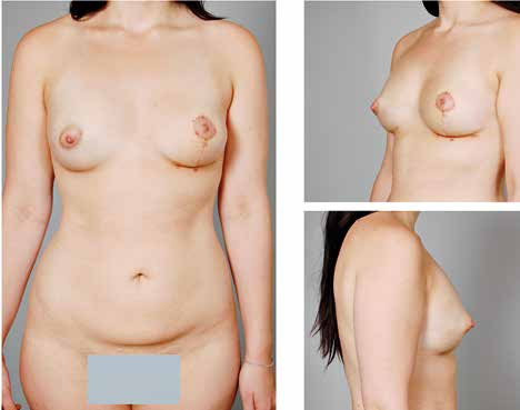 Fig. 7. The patient with bilateral tuberous breast deformity after 2 sessions of lipomodelling and contralateral vertical mastopexy – 3 months follow-up