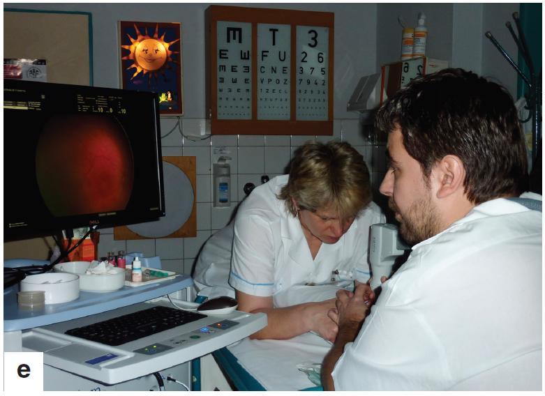 Oční vyšetření bylo u všech dětí provedeno v lokální instilační anestezii (obr. 1a), za použití víčkového rozvěrače (obr. 1b), v arteficiální mydriáze. Vyšetření očního pozadí indirektním oftalmoskopem s použitím 28D čočky a digitálním zobrazovacím systémem RetCam 3 (obr. 1c, d, e)