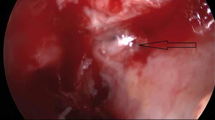 Peroperační snímek (Storz, Německo, 30° optika). Únik mozkomíšního moku z oblasti rinobaze po odloučení sliznice.