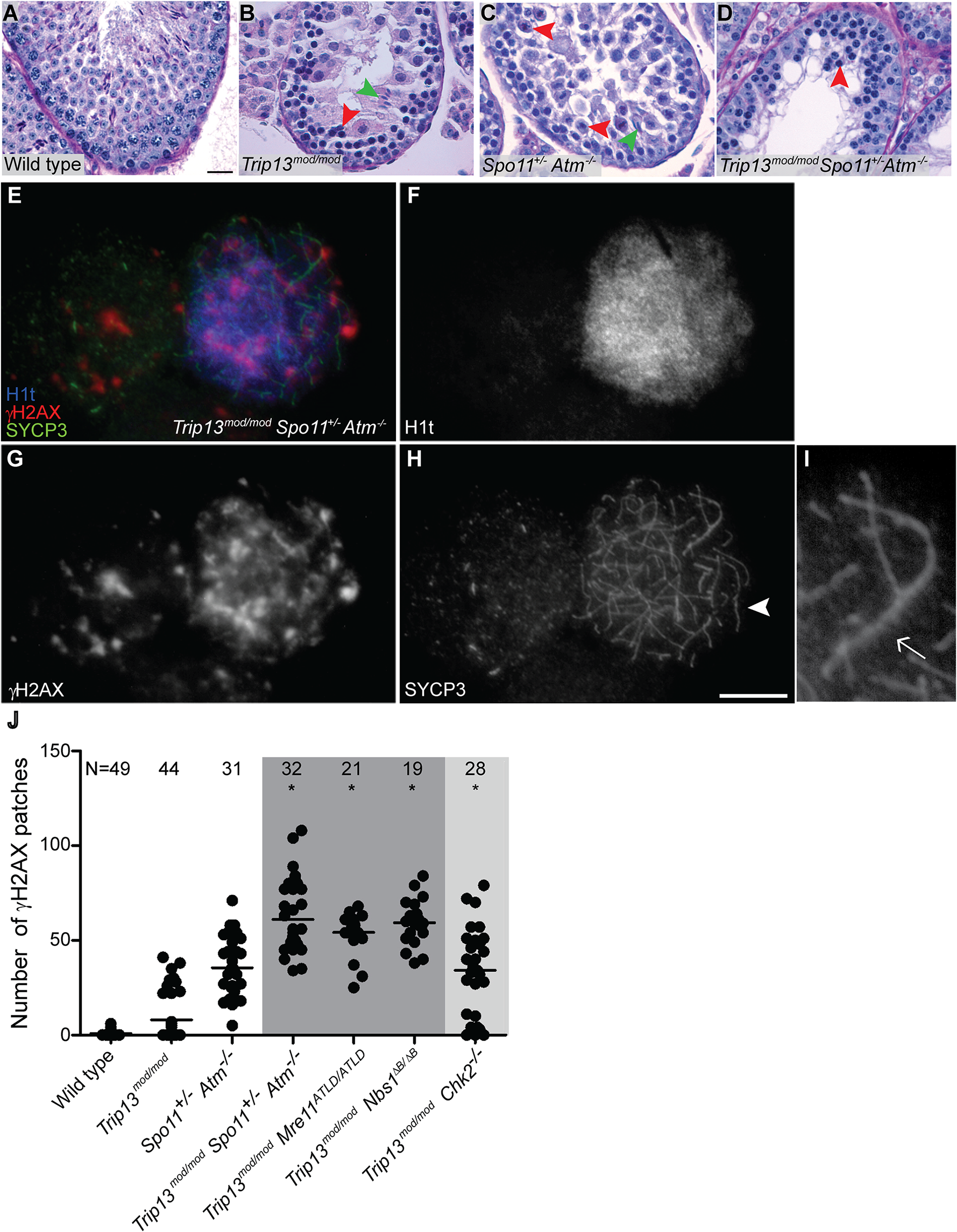 <i>Trip13</i><sup><i>mod/mod</i></sup> <i>Spo11</i><sup><i>+/−</i></sup> <i>Atm</i><sup>−/−</sup> spermatocytes arrest at epithelial stage IV, but present autosomal asynapsis, multiple unrepaired DSBs and fail to form a sex body at mid/late pachynema.