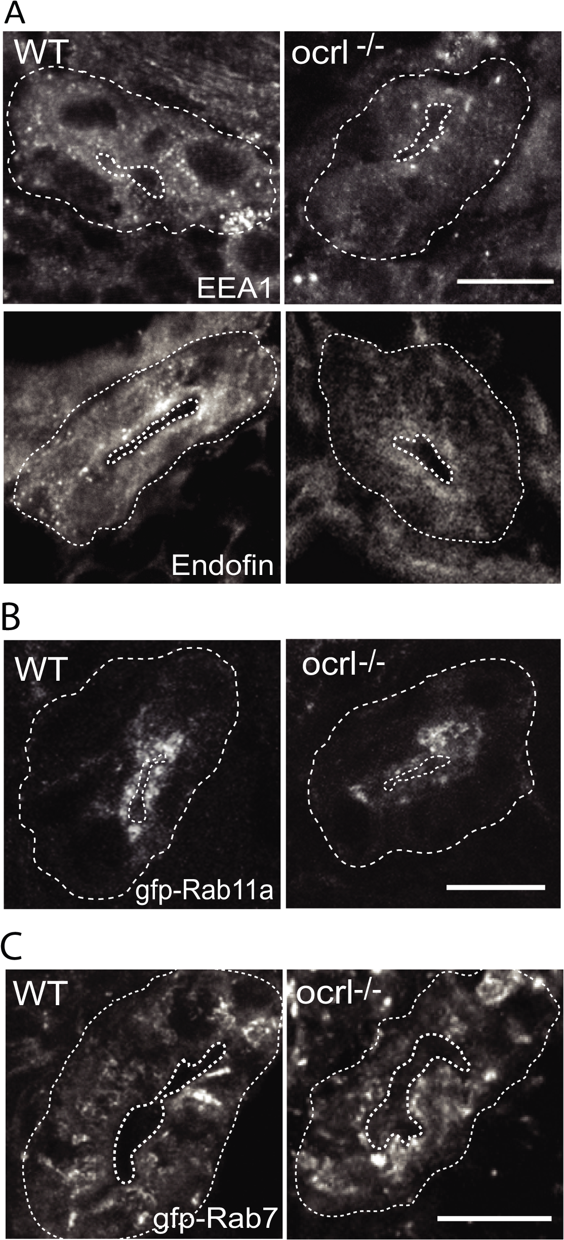 Reduced endosomal staining in OCRL1 deficient pronephros.