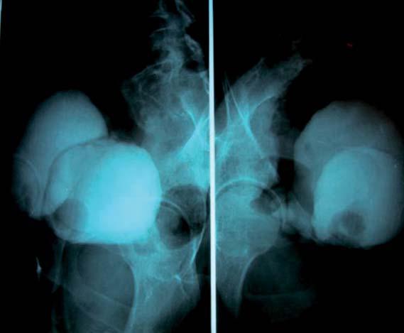 Cystogramy v boční projekci ukazují kompletní duplikaci močového měchýře.