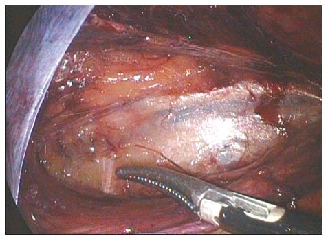 TAPP levého třísla. Špička disektoru ukazuje na n. cutaneus femoris lateralis Fig. 1. TAPP of the left groin. The dissector tip points at n. cutaneus femoris lateralis