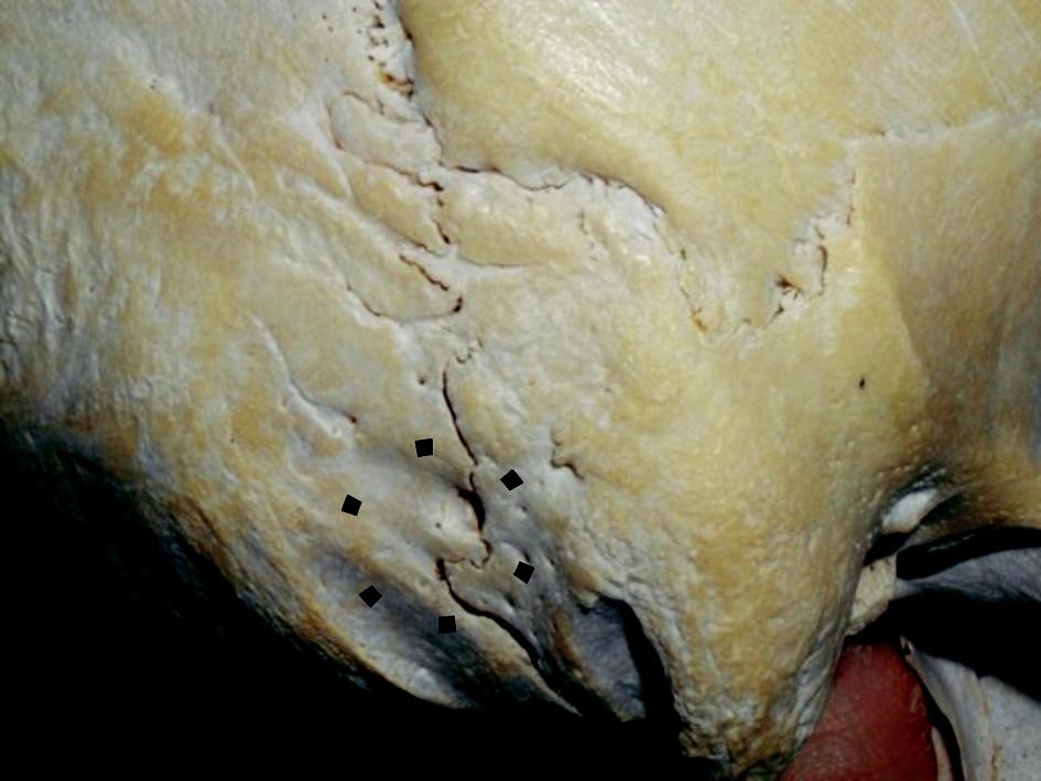 Pohľad na temporookcipitálnu oblasť lebky vpravo. Vyznačená je oblasť pre minimálnu retrosigmoidnú transemisárnu kraniotomiu.