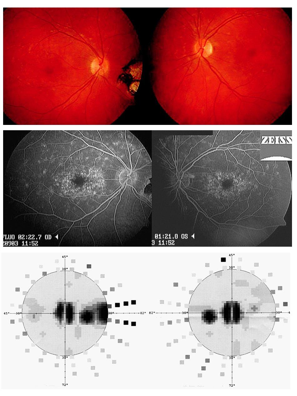 Fundus flavimaculatus projevující se jako zadní uveitida obou očí u 33leté pacientky. Koincidence s toxoplazmovou chorioretinitidou pravého oka. A) Žlutobělavá drobná ložiska na úrovni retinálního pigmentového epitelu obou očí. Na očním pozadí pravého oka patrná pigmentovaná chorioretinální jizva. B) Fluorescenční angiografie ukazuje hyperfluorescenci drobných ložisek na sítnici obou očí, nedochází však k patologickému prosakování fluoresceinu. C) Vyšetření zorného pole odhalilo centrální skotomna obou očích a další skotom v temporální periferii pravého oka korespondující s ložiskem, které se nachází nazálně od papilyzrakového nervu