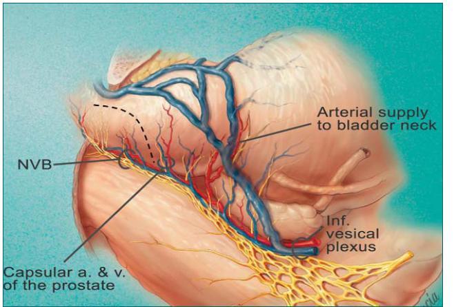 Schéma nové techniky uvolnění nervově cévních svazků při otevřené radikální prostatektomii (poskytující srovnatelné výsledky zachování erekce s Menonovou technikou, ale při zachování onkologické bezpečnosti).