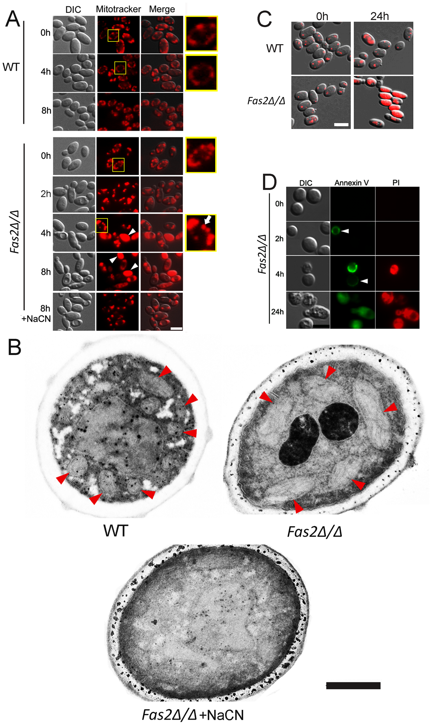 The death of <i>Fas2Δ/Δ</i> yeast cells in serum is mediated via mitochondria.