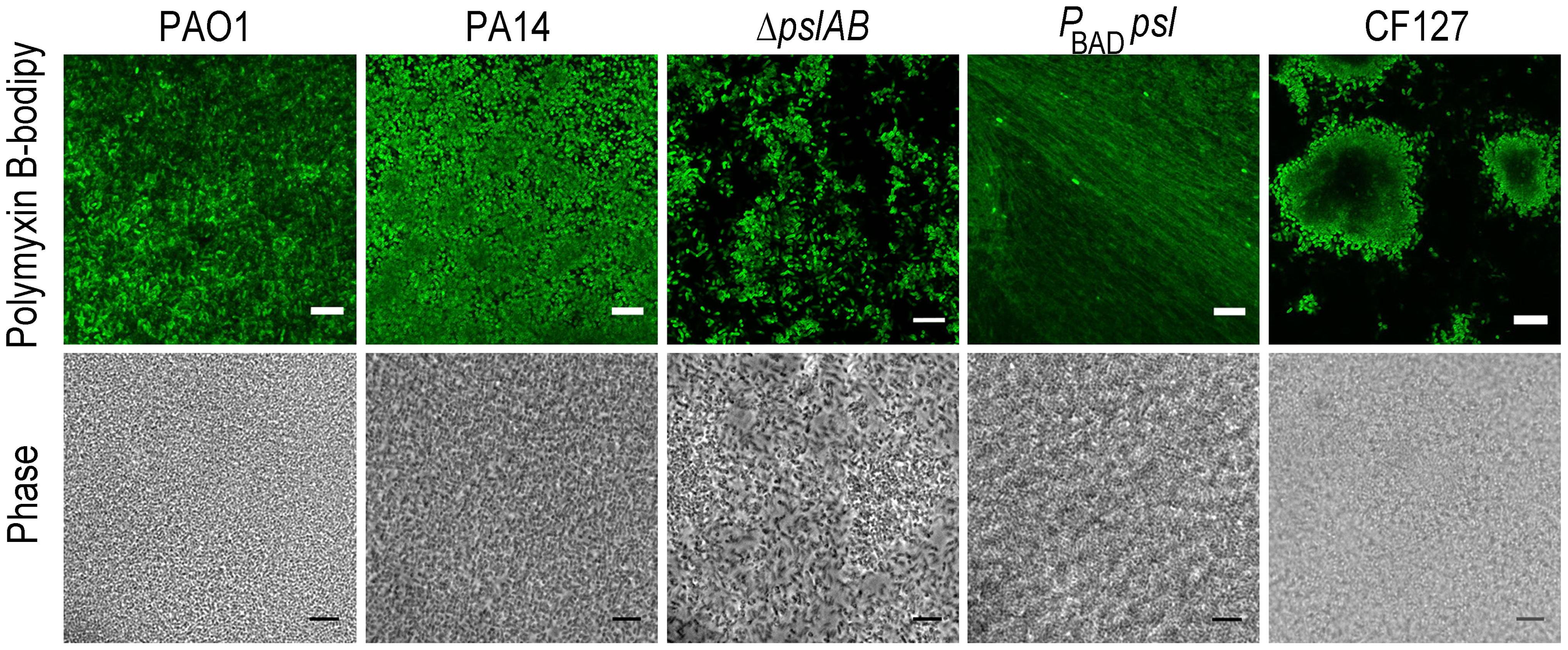 Polymyxin B interacts with the Psl extracellular matrix.