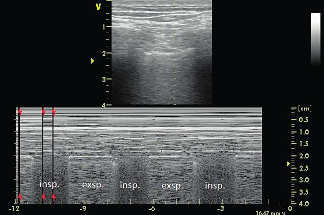 Lung point v přední axilární čáře potvrzující diagnózu okultního ventrálního pneumotoraxu