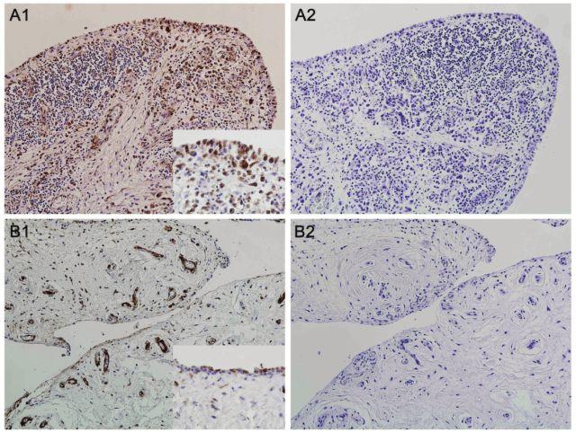 Exprese proteinu vázajícího mastné kyseliny-4 (FABP4) v synoviální tkáni pacientů s revmatoidní artritidou (RA) (A1) a osteoartrózou (OA) (B1). Největší intenzita barvení byla přítomna v mononukleárních buňkách zánětlivého infiltrátu RA synoviální tkáně. Cévy, kapiláry a tuková tkáň se barvila ve srovnatelné intenzitě u obou skupin. Izotypová kontrola (myší IgG) byla použita jako negativní kontrola (A2, B2). Originální zvětšení 100x, detail v rámečku 400x.