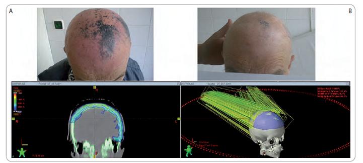 Původní rozsah onemocnění frontální, parietální a temporální krajiny vlasaté části hlavy (A) a efekt paliativní radioterapie po 18 měsících (B). V dolní řadě jsou ukázky ozařovacího plánu technikou RapidArc; v colorwash izodozním zobrazení je demonstrováno šetření přilehlé mozkové tkáně při adekvátním prozáření cílového objemu. Minimum je nastaveno na 95 % předepsané dávky.
