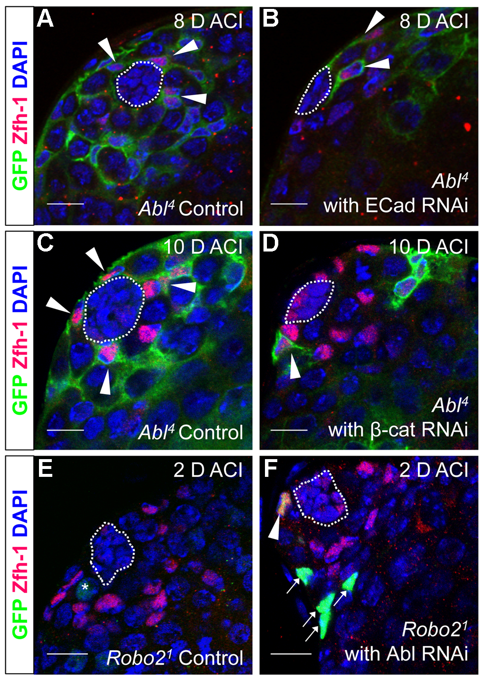 Robo2 and Abl alter cell-cell adhesion to control CySC maintenance.