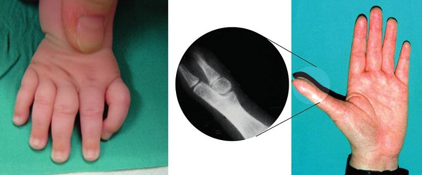 Anomálie typické pro pacienty s Fanconiho anémií a Diamondovou-Blackfanovou anémií: trifalangeální palec, hypoplazie thenarového svalstva.
