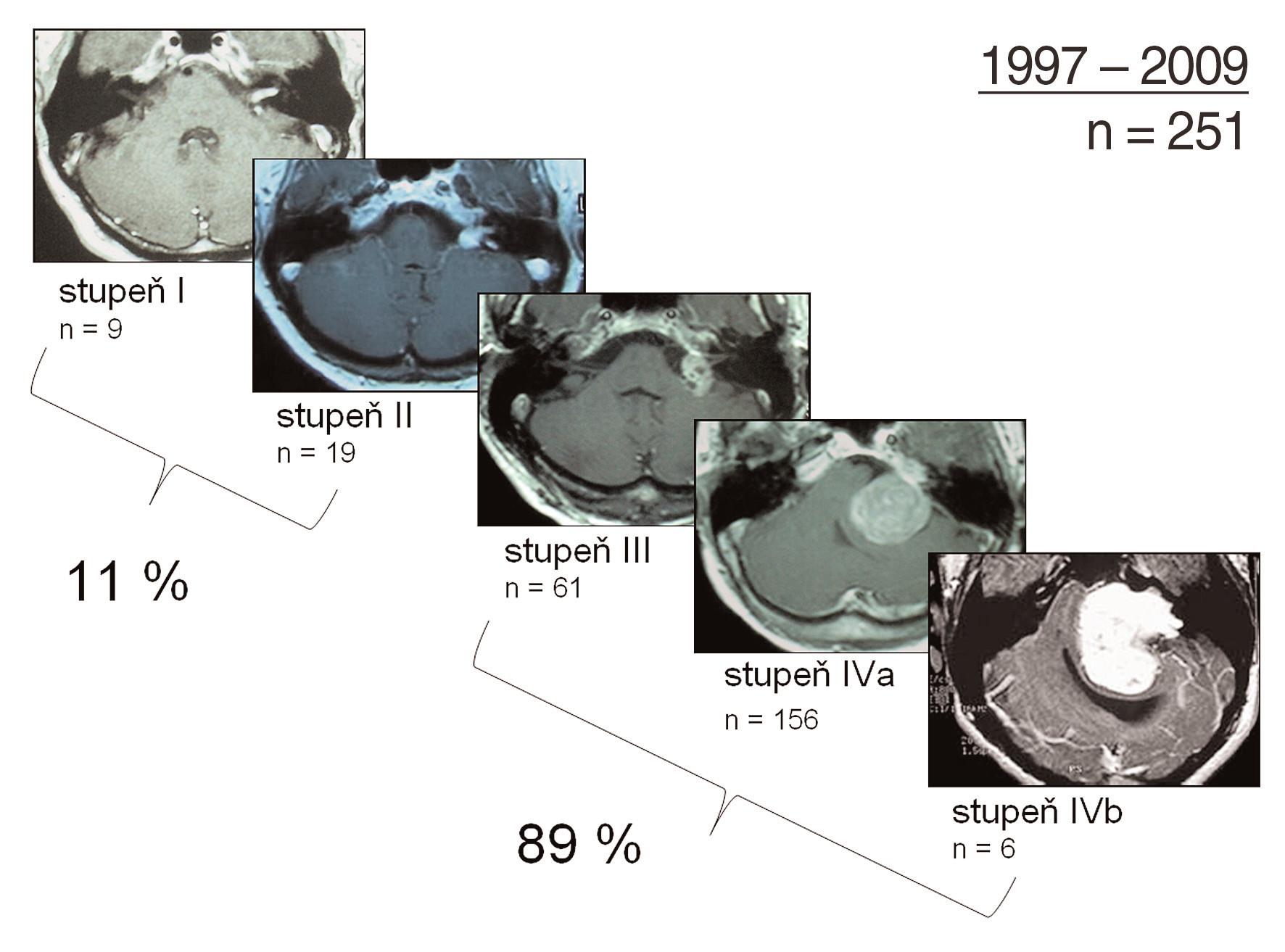 Klasifikace velikosti vestibulárních schwannomů: přehled operovaných vestibulárních schwannomů na Klinice otorinolaryngologie a chirurgie hlavy a krku 1. LF UK a FN v Motole v letech 1997–2008