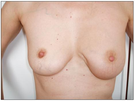 Stav po parciální resekci levého prsu Fig. 1. The patient's condition following her left breast resection