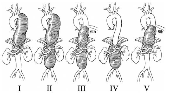 Modifikovaná klasifikace TAAA podle Crawforda Fig. 1. Modified TAAA classification according to Crawford