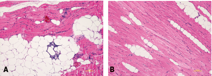 Histological examination of the muscles: (a) the pectoralis muscle after fat grafting with lipomatous changes, (b) the serratus anterior muscle - the control sample from the same patient (without fat grafting). Haematoxylin eosin staining. Scale bar 100 mm.