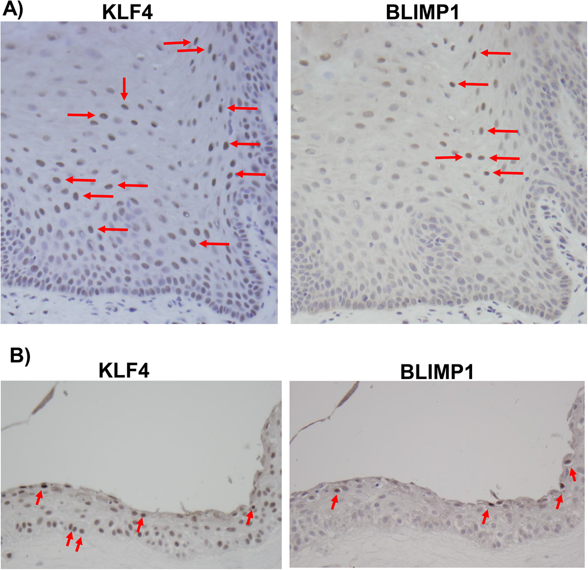 KLF4 and BLIMP1 expression is differentiation-dependent in normal tongue tissue.