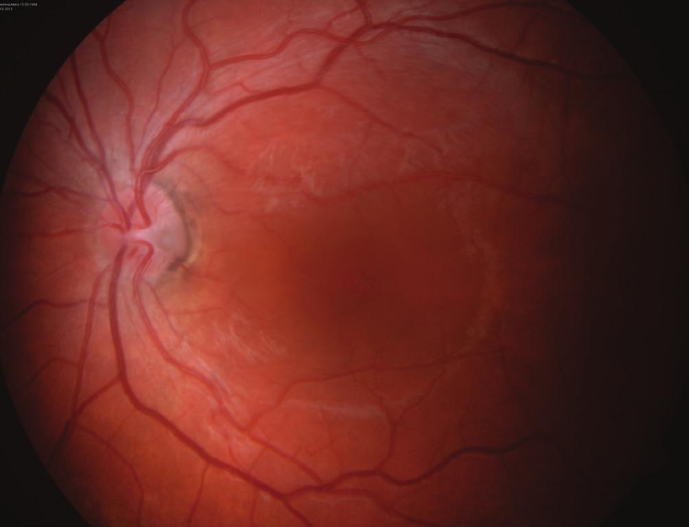 Obr. 6b Pacient č. 2 Barevný snímek očního pozadí OL, temporálně na terči zrakového nervu zachycena jamka terče, v makule okrouhlé prosáknutí