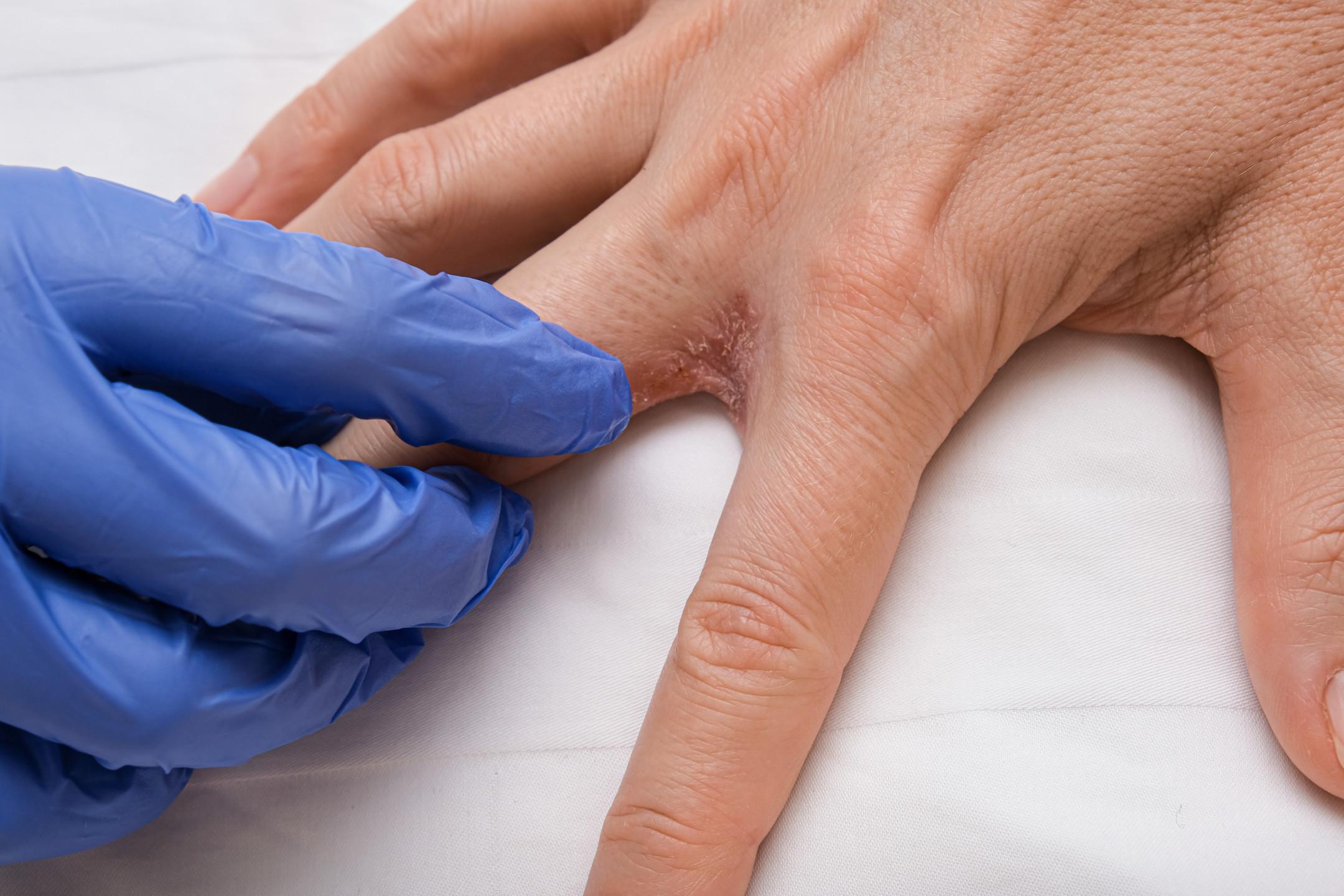 autoinflammatory diseases
