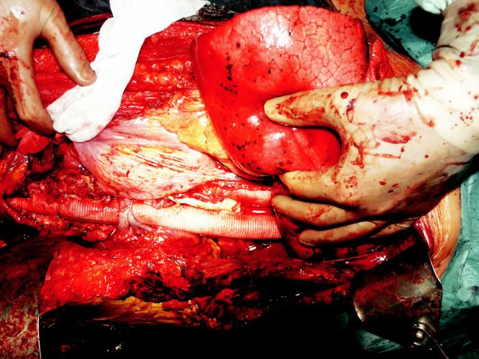 Pohled do operačního pole – náhrada hrudní a břišní aorty cévní protézou, viditelná sutura levostranné renální žíly, která prochází přes protézu Fig. 1. A view of the operating field – replacement of the thoracic and abdominal aorta for a vascular prosthesis, a suture of the left renal vein, exiting over the prosthesis, is detectable