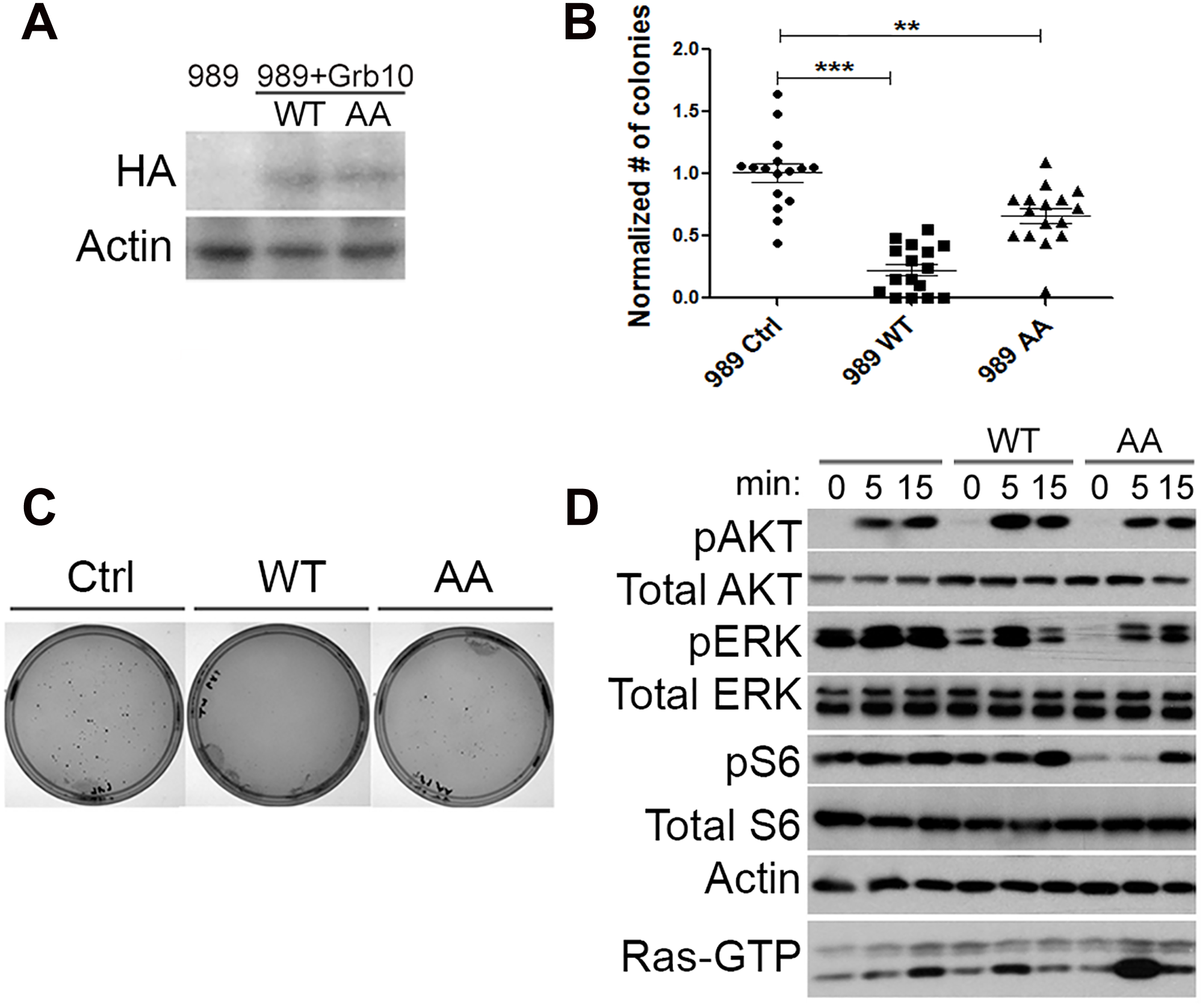 <i>Grb10</i> expression reduces soft agar colony formation by <i>Nf1</i> mutant tumor cell line.