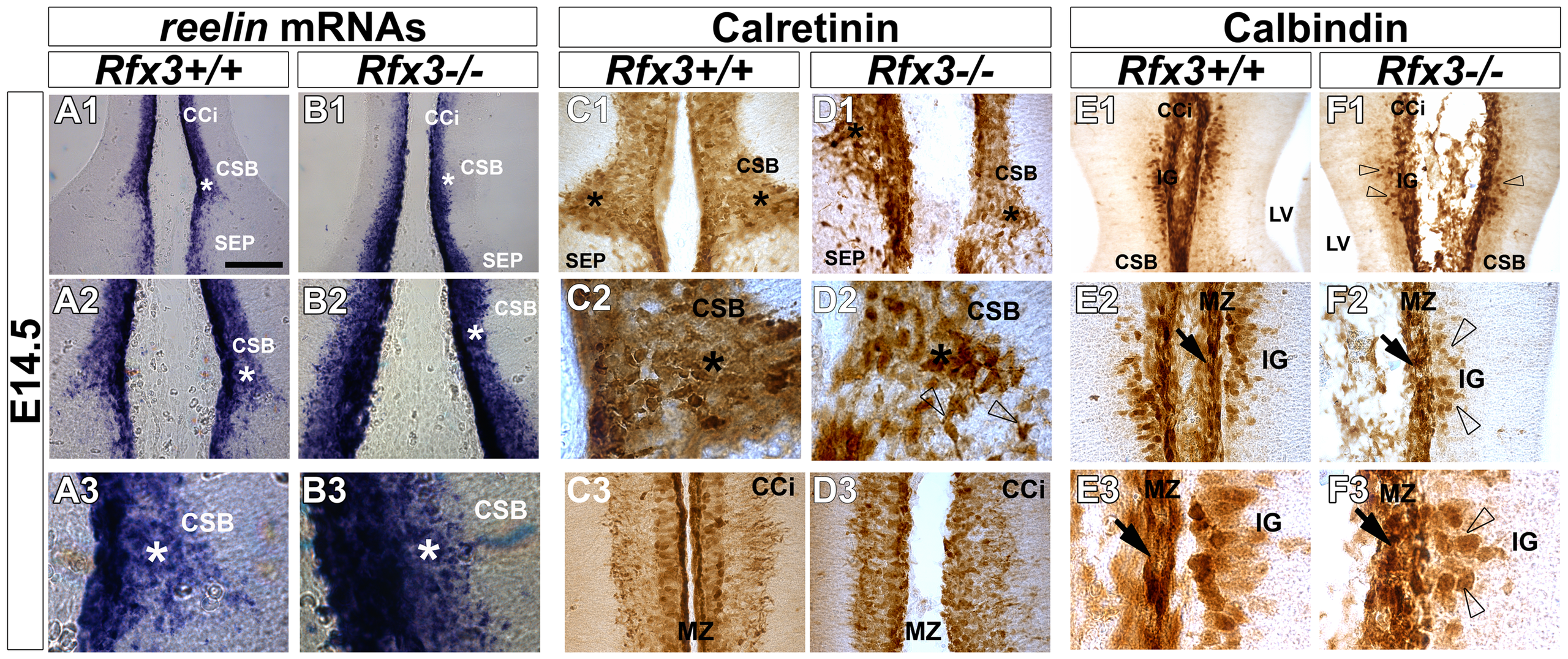 Aberrant localization of midline neurons before CC formation at E14.5.