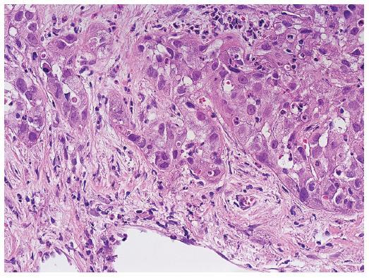 Stromální invaze na periferii nádorového uzlu. Trámce nádorových buněk pronikají do vaziva. HE, zvětšení objektiv 40x.