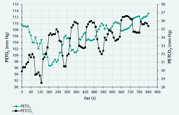 Kolísání křivek parciálního tlaku kyslíku a oxidu uhličitého na konci výdechu (PETO<sub>2</sub> a PETCO<sub>2</sub>)