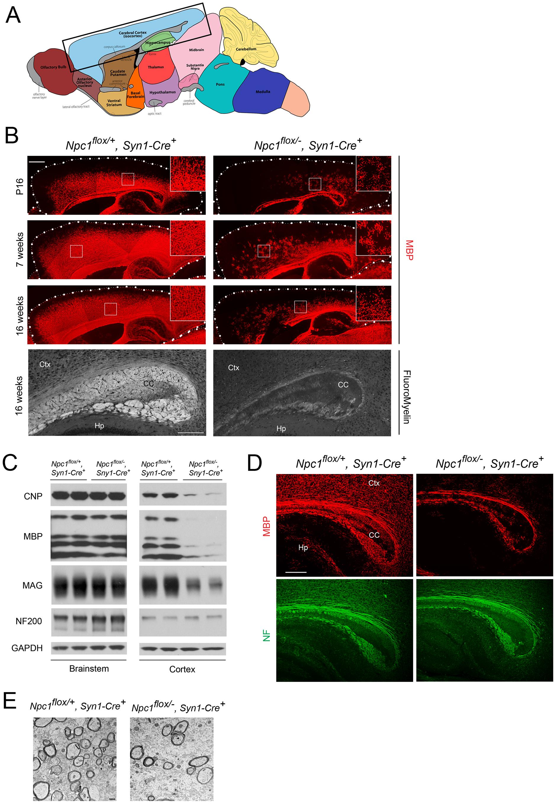 Forebrain dysmyelination in mice following neuron-specific deletion of <i>Npc1</i>.