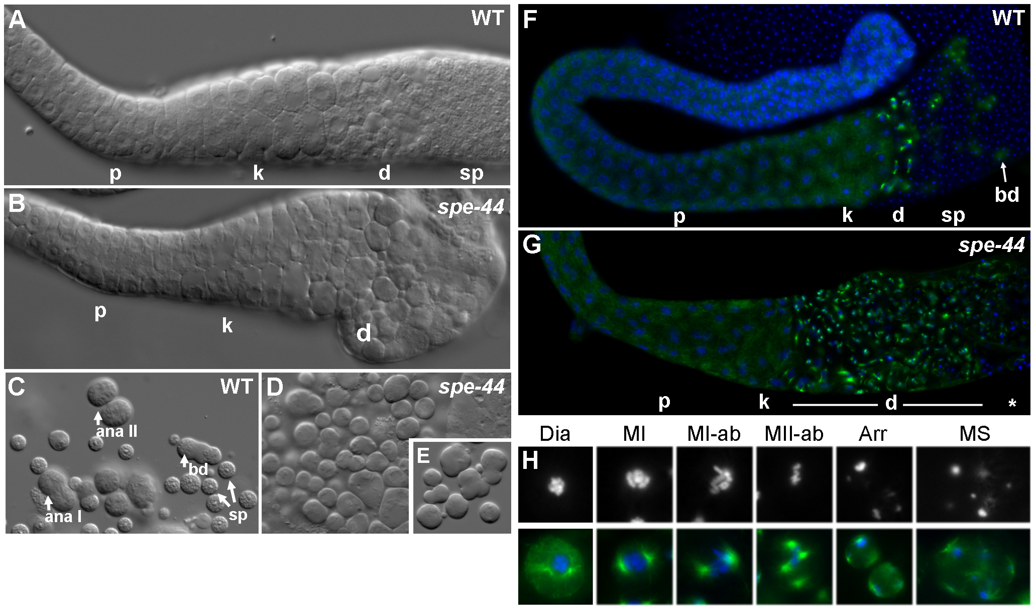 Spermatogenesis defects in <i>spe-44</i> males.
