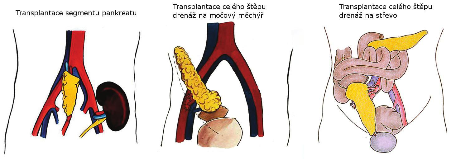 Techniky transplantace pankreatu používané v IKEM Fig. 1. Pancreas transplantation techniques used in IKEM