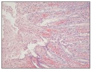Detailný pohľad na sliznicu hrubého čreva s obrazom ischemickej kolitídy Fig. 6. A detail view of the large intestinal muscosa showing signs of ischemic colitis