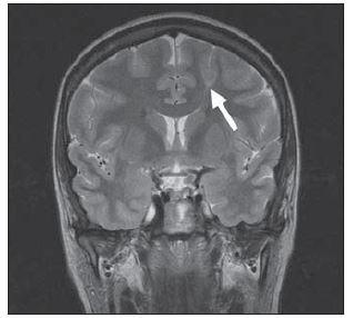 Fokální kortikální dysplazie typu II.