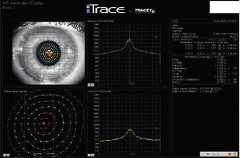 Přehledové zobrazení sejmutých bodů a aberací, včetně grafického vyjádření horizontálního  a vertikálního profilu pozice detekovaných bodů