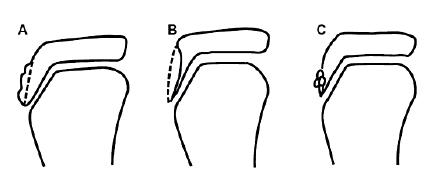 Závažnost OS dle RTG nálezu: A) změna nebo lehká elevace tuberositas tibiae;   B) radiolucence tuberositas tibiae; C) fragmentace tuberositas tibiae (8).