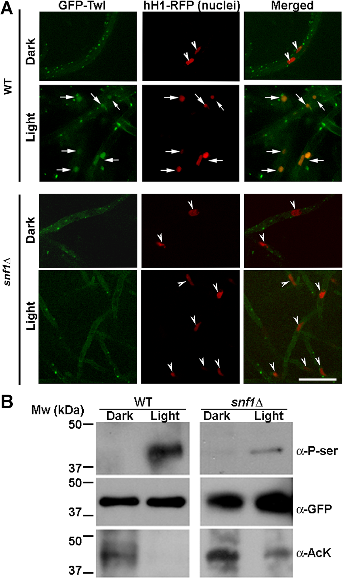 Snf1 kinase dependent phosphorylation drives the translocation of GFP-Twl into the nucleus in response to phototropic cues.