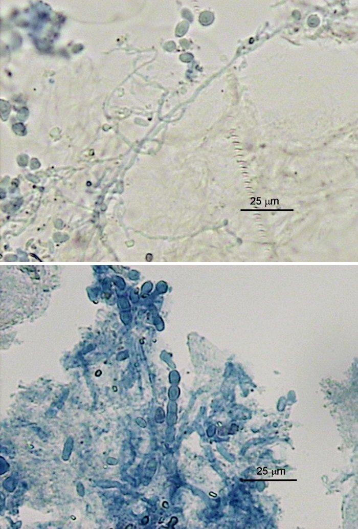 a, b. Mikroskopické nálezy v nechtoch pacientov (preparáty v KOH s Parker black ink); a) tenšia rozvetvená hýfa a oválne artrokonídiá, b) širšie polámané hýfy, artrokonídiá jednotlivo a v retiazkach (foto A.V.) Fig. 1 a, b. Microscopy nail findings (potassim hydroxide and Parker black ink mounts); a) thin-walled hyphal branches and oval arthroconidia, b) thicker-walled hyphal fragments, single arthroconidia and arthroconidial chains (photo A.V.)
