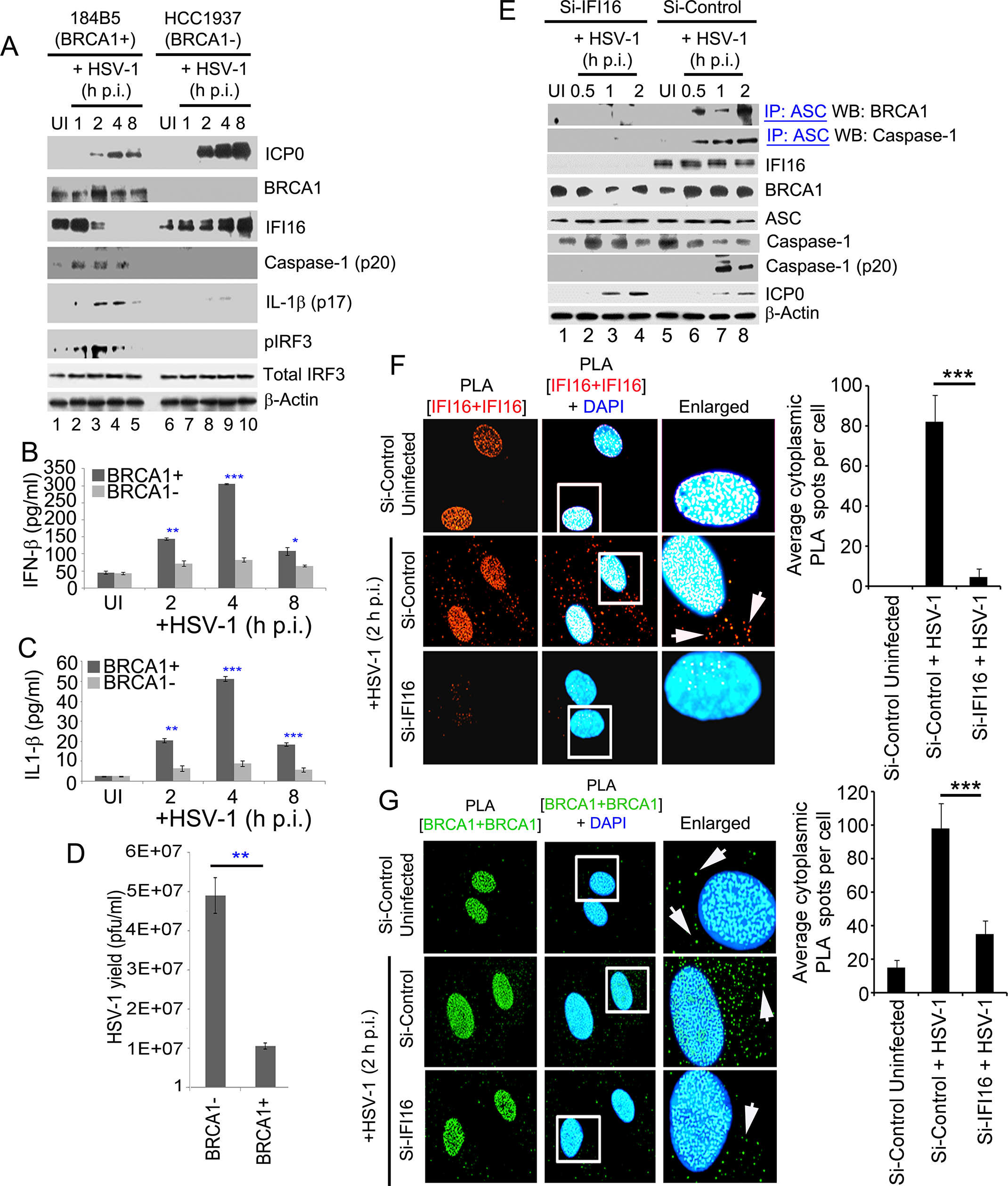 A crucial role for BRCA1 on host innate immune response activation during HSV-1 infection.