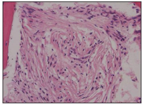 Histologické hodnocení trepanobiopsie kostní dřeně. Barvení hematoxylin-eozin, zvětšení 200krát. Vřetenovité histiocyty infiltrují kostní dřeně.