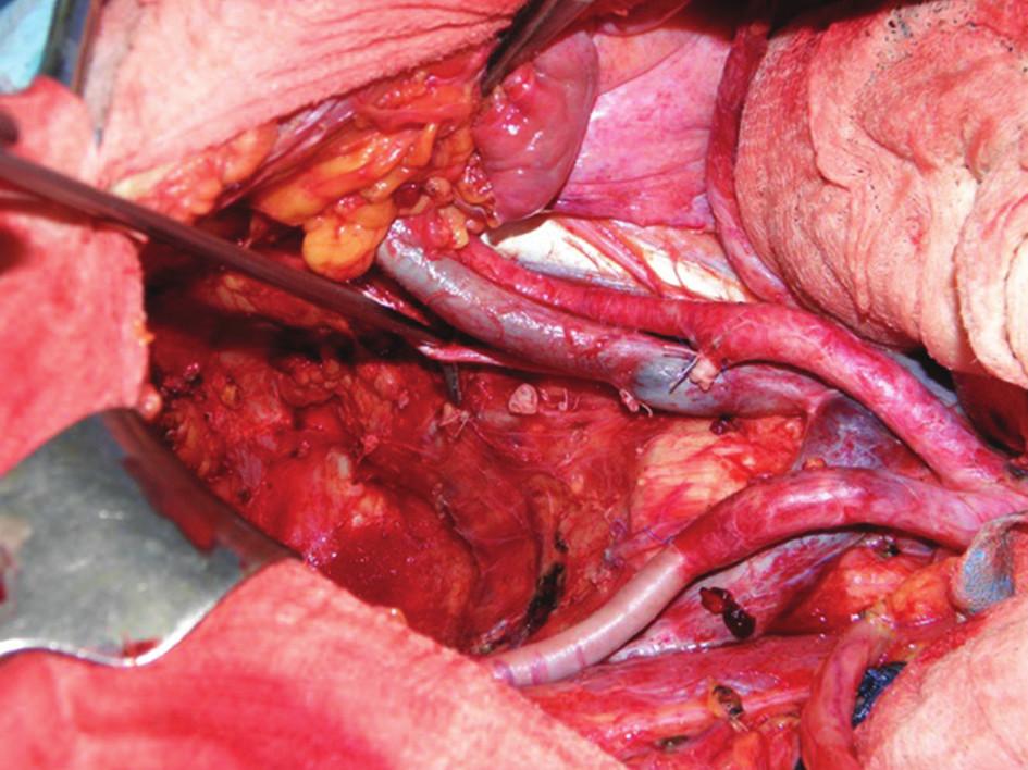 """Operační nález: pánevní dno po dokončení totální pelvické exenterace s laterální lymfadenektomií – patrné jsou pahýly ligovaných vnitřních ilických cév a obturátorový nerv (na peanu) Fig. 4: Intraoperative finding: pelvic floor after completing pelvic exenteration and lateral lymphadenectomy – both internal iliac arteries are ligated, the obturator nerve is visible in the """"Rochester-Péan"""" forceps"""
