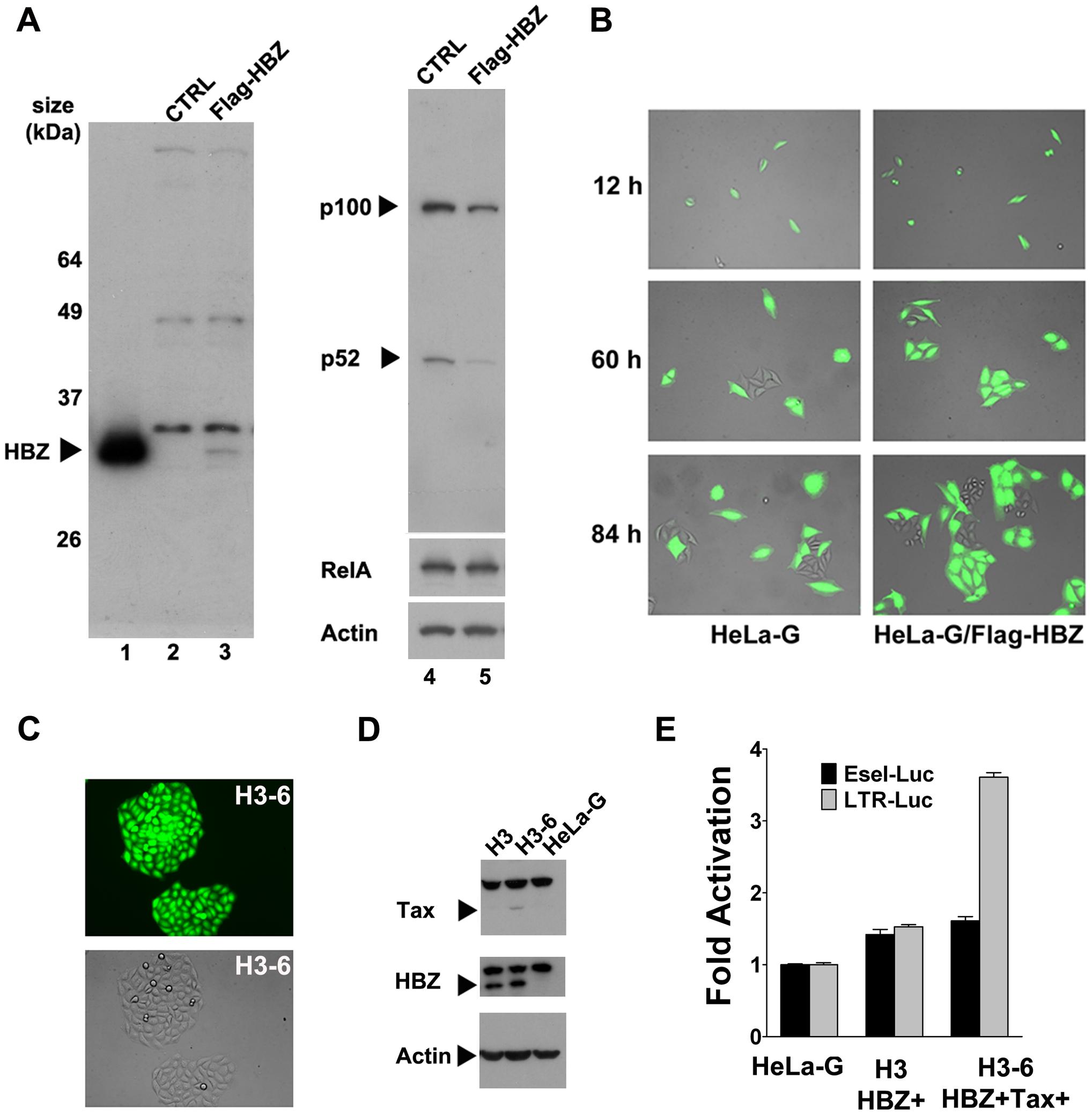 HTLV-1 HBZ mitigates cellular senescence induced by Tax.