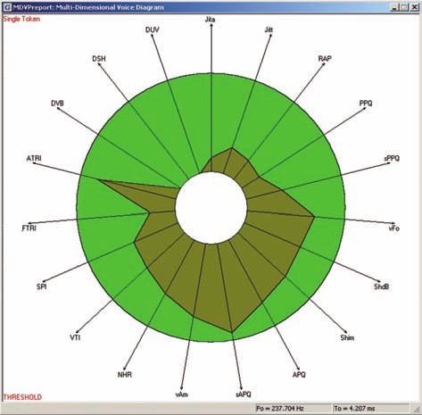 Multidimezionální analýza hlasu – všechny sledované parametry jsou v mezích normy (program MDVP, fy Kay-PENTAX).