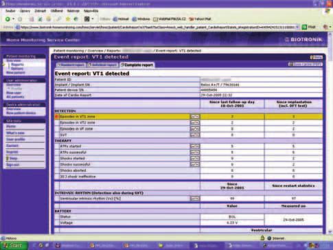 Hlášení významné události v systému Biotronik Home Monitoring<sup>TM</sup>.