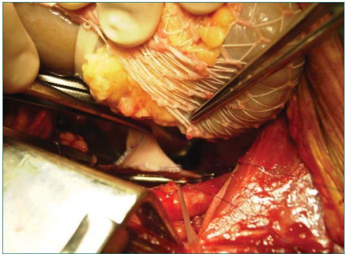 Našitá pravá ledvina s renální žílou prodlouženou o segment dolní duté žíly.