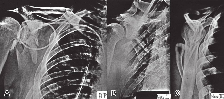 Radiologické vyšetření lopatky: A – předozadní snímek ramenního kloubu; B – Neerova I. projekce (je přesně zobrazena kloubní štěrbina); C – Neerova II neboli Y-projekce. Fig. 3: Radiologic examination of scapula: A – anteroposterior view of the shoulder; B – Neer I view (showing clearly the joint line); C – Neer II view or Y-view.