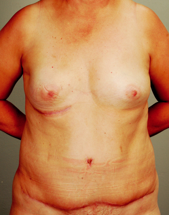 Fig. 4. Late postoperative result after successful reconstruction with the SIEA flap from the left side of the abdomen