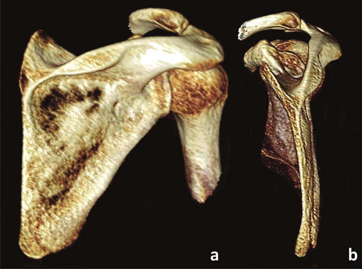 Zlomenina apexu dolního úhlu s ventrální angulací a – dorzální pohled, b – mediální pohled. Fig. 3: Fracture of apex of the inferior angle with anterior angulation a – posterior view, b – medial view.